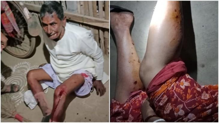 प. बंगाल: बीजेपी की मीटिंग में TMC कार्यकर्ताओं ने फेंका बम, 7 घायल